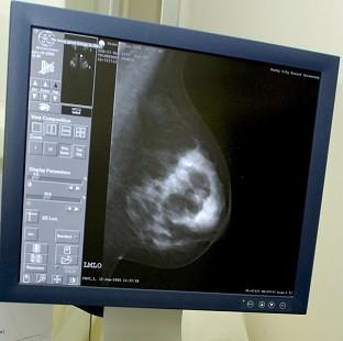 More women under the age of 50 are being diagnosed with breast cancer, data suggests