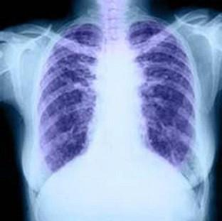 About 85% of patients with chronic obstructive pulmonary
