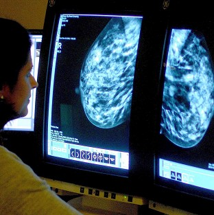 Doctors should be able to give breast cancer sufferers a better prognosis using an improved test, experts say