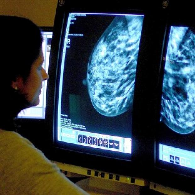 Hillingdon Times: Many women having mastectomies would have been better treated with a lumpectomy, say researchers